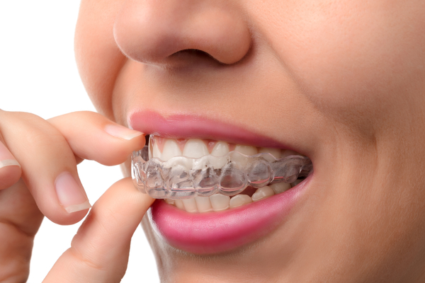 How to Clean Your Invisalign Tray?