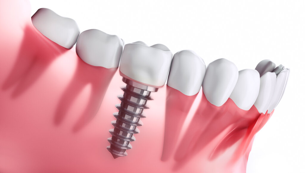 Risks and Benefits of Implant Restoration